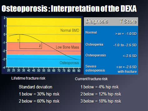 Osteoporosis by drdoc on-line